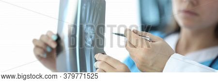 Woman Looks At An X-ray Hand, Next To Doctor. Process Repairing Wrist. Doctor In Clinic Examines And