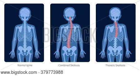 Normal Spine And Types Of Spine Defects. Scoliosis In Child Body. Xray Flat Vector Illustration. Bac