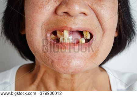 An Elderly Asian Woman Smiled And Saw The Remaining Teeth In The Mouth. Due To Partial Loss Resultin