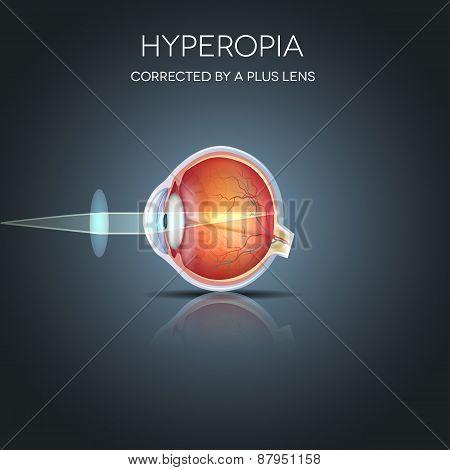 Hyperopia corrected