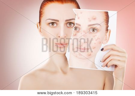 acne problems red haired woman portrait on pink