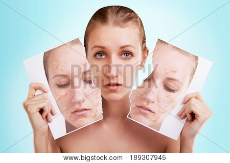 blond woman with her portrait of ugly skin