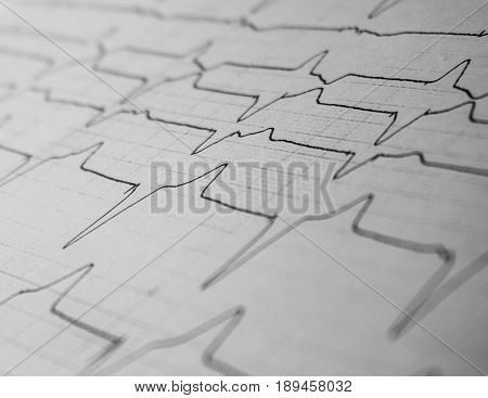 Electrocardiogram strip of a patient with cardiac pacemaker