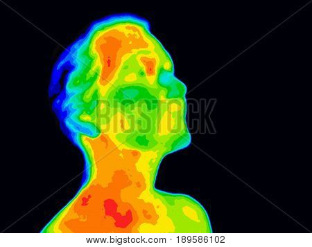 Thermographic image of a human face and neck showing different temperatures in a range of colors from blue cold to red hot. Red in the neck might indicate raised CR-P levels this could be a sign of inflammation and Carotid Artery inflammation which could