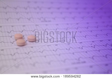 Background of a three-channel holter electrocardiogram of a patient with cardiac pacemaker and three pills