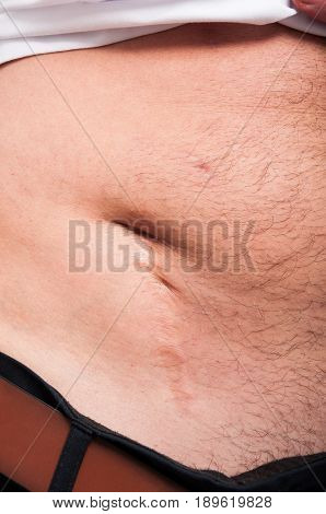 Big Scar After Appendicitis Surgery