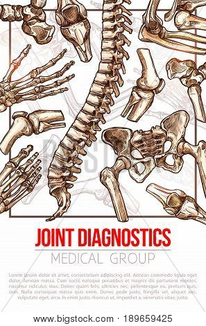 Joints diagnostics medical poster for hospital. Vector design of human body bones spine or knee and arm or hand fingers and leg for health therapy or x-ray examination, orthopedic or medical surgery