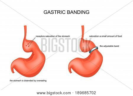vector illustration of gastric banding stretched from overeating