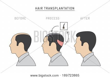 Infographics on the subject of hair transplantation on the example of a man with a picture of the result of transplantation before and after. Vector image of a patient isolated on white background