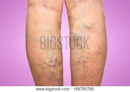 The varicose veins on a legs of old woman isolated on pink