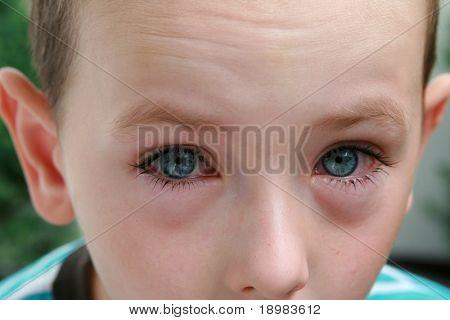 Junge mit Allergie, Konjunktivitis und schwarze Ringe, runde Augen