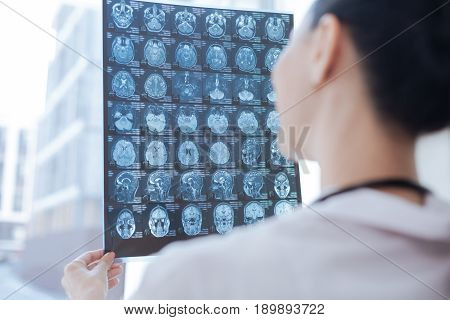 Examining tomography results. Skilled proficient delighted oncologist working at the clinic while examining brain x ray image and detecting problems
