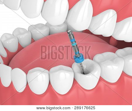 3d Render Of Tooth With Endodontic File In Jaw Over White Background. Root Canal Treatment Concept.