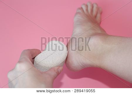 Pumice Stone For Foot Care. In The Photo A Woman Hand Holds A Pumice Near The Heel Of Her Foot. Remo