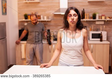 Vulnerable Woman With Face Full Of Evidence Of Domestic Violence Because Of Alcoholic Husband. Aggre
