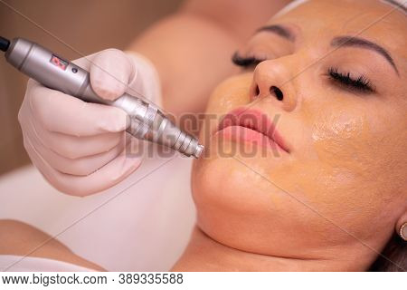 Close Up Of A Woman's Face While She Is Having A Healing Therapy With Electric Pen