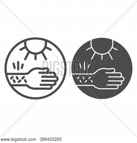 Hand With Irritate Skin And Sun Line And Solid Icon, Allergy Concept, Allergy To Sunburn Sign On Whi