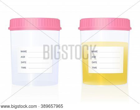 Urine Sample - Specimen Cups For Gynecological Analysis - With Blank Labels And Pink Screw Caps - Em