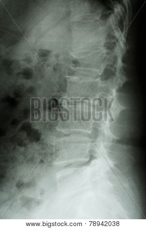 burst fracture at lumbar spine (collapse at body of lumbar spine)
