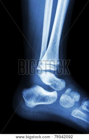 Film x - ray normal child's ankle . poster