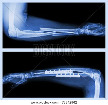 Fracture ulnar and radius (Forearm bone)