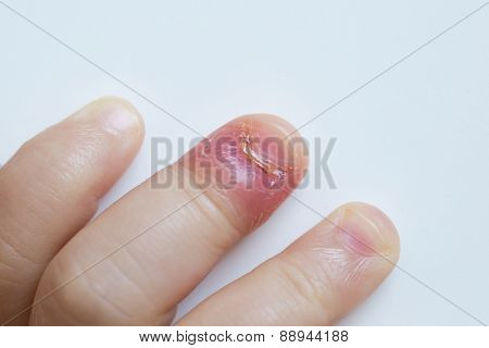 Paronychia swollen finger with fingernail bed inflammation due to bacterial infection on a toddlers hand. poster