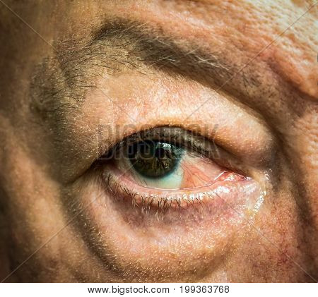 Close up of the eye with pseudopterygium after one year of conjunctiva squamous cell carcinoma surgical removal