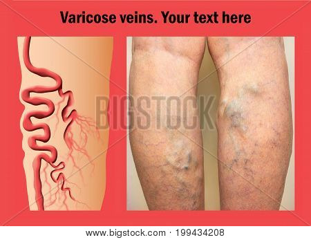 The varicose veins on a legs of old woman. Collage with copy space