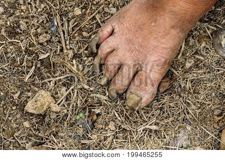 Toenails disease in old male gardener on the ground