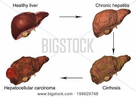 Liver disease progression in Hepatitis B and C viral infection, 3D illustration