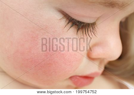 Little child with diathesis symptoms on cheeks, closeup