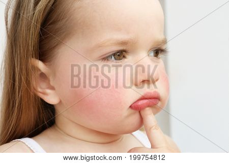 Little girl with diathesis symptoms on cheeks, against light background