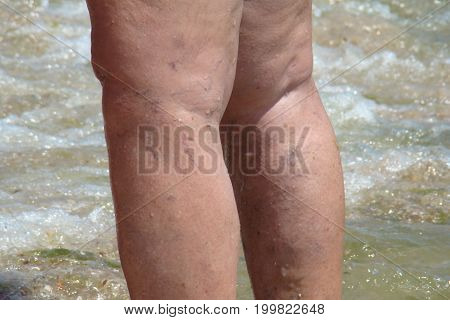 varicose veins of the lower extremities of the legs