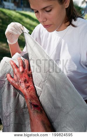Treatment Of A Third Degree Burn, Outdoors Image, Color Image, Focus On Arm