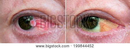 Close up of the eye with conjunctiva squamous cell carcinoma before and one year after surgiсal removal. Post surgery pseudopterygium