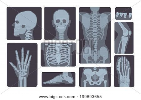 Realistic x-ray shots collection. Human body hand, leg, skull, foot, chest teeth spine and other