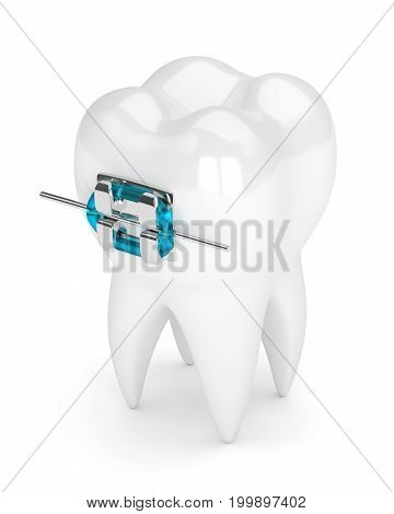 3D Render Of Tooth With Brace