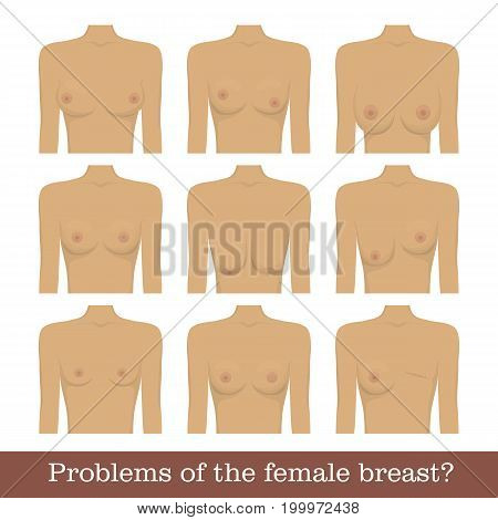 Problems female breast set. Various cosmetic problems of women s breasts for designers and illustrators. Bust s disorder collection in the form of a vector illustration