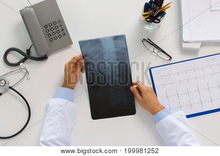 medicine, healthcare and surgery concept - hands of doctor or surgeon with spine x-ray sitting at table
