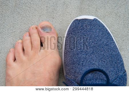 Uncomfortable Shoes. Nail Fungus. Healthy Feet. Finger Disease. Hematoma. Toe Injury. Bruise Treatme