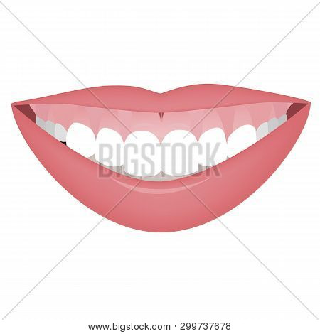 Mouth With A High Smile Line Or Gummy Smile Before The Cosmetic, Orthotropics Or Orthotropics Correc