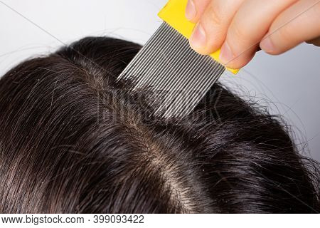A Brunette Woman With Pediculosis Cleans Her Hair From Lice And Nits With A Comb With Small Prongs.