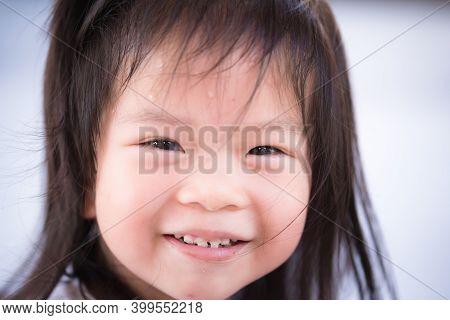 Headshot Adorable Asian Little Child Girl Sweet Smile. Kid Has Anterior Cavities. Children Feels Hot