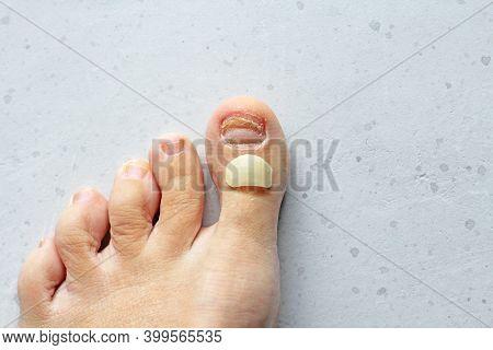 Exfoliation Of Nail On Big Toe, Close-up In Woman, Girl. Toenail Damage, Fungus, Trauma, Big Toe Nai