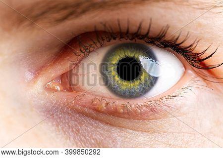 Woman Macro Eye. Macro Photography Of Human Eye