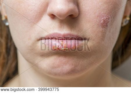 Close Up Of Female Lips Affected By Herpes Virus. Herpes Virus On The Female Face.
