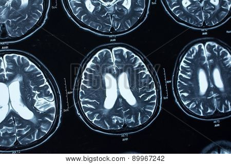 research in medicine. CT scan of the patient. poster