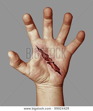 Wounded Hand
