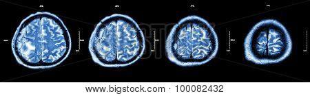 Brain Tumor  ( Film Ct-scan Of Brain : Show Part Of Brain With Tumor )