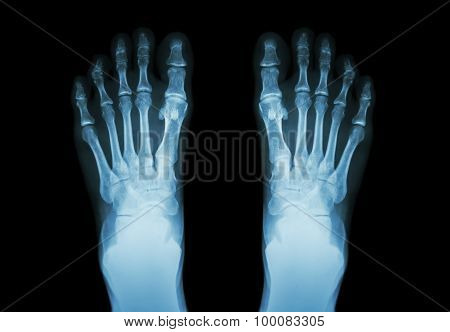 Film X-ray Both Foot ( Front View )